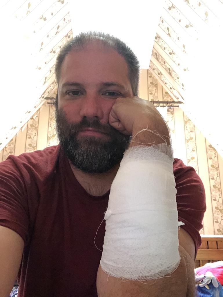 Jan with bandaged arm